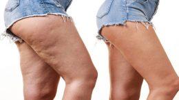 qu-est-ce-que-la-cellulite